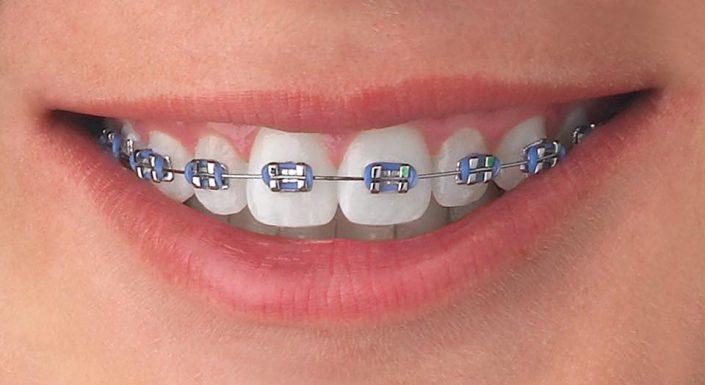 dental lg 5